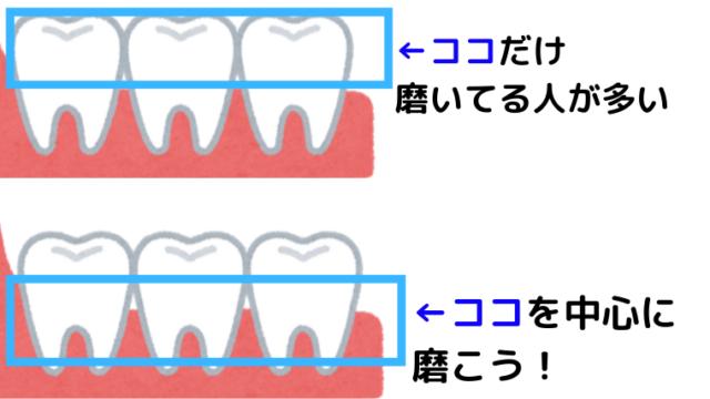 歯と歯茎の間を磨く